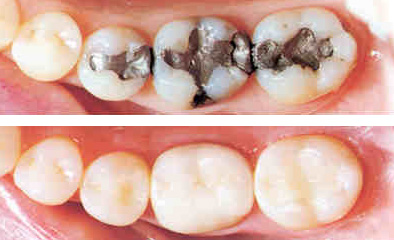 adp white fillings