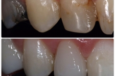 Whitening/Crown
